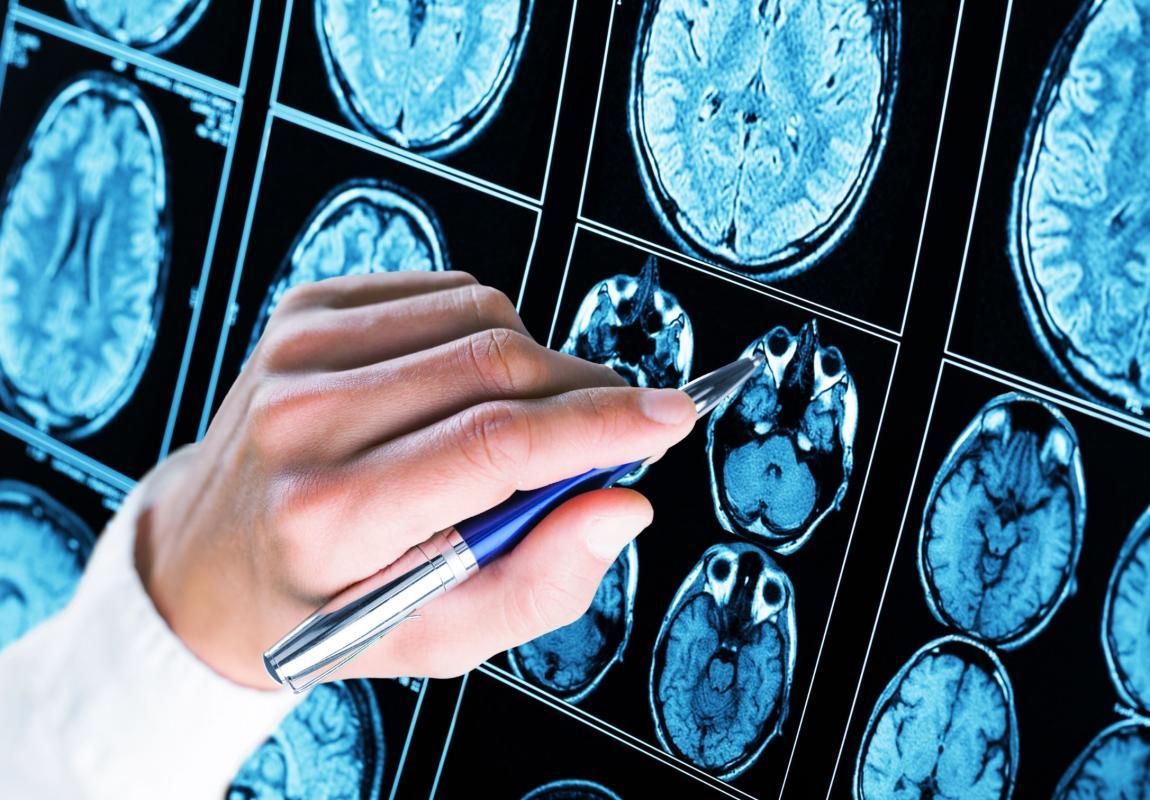 Doctor assenyala una tomografia cerebral